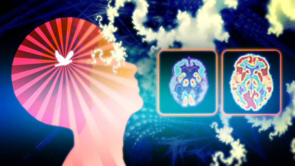 Music Affects and Benefits our Brains