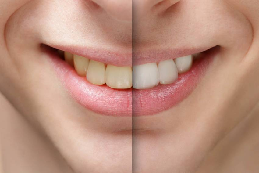 How To Whiten Your Teeth At Home 10 Natural Remedies For Sparkling