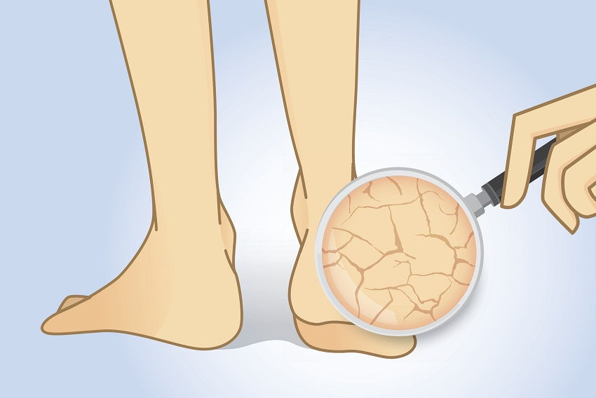 Get Rid of Dry Feet and Calluses Lemon Peel