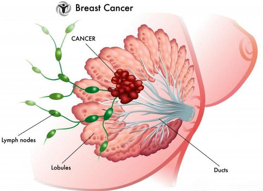 Habits European Women Reduce Risk of Breast Cancer