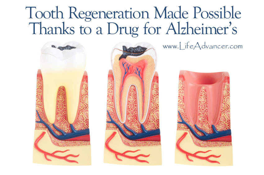 Tooth Regeneration Possible Drug Alzheimer