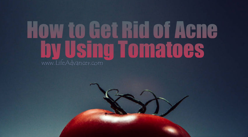 How to Get Rid of Acne by Using Tomatoes (Easy and Effective Recipe)
