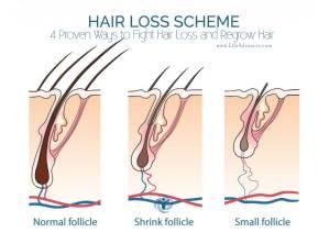 Hair Loss Regrow Hair