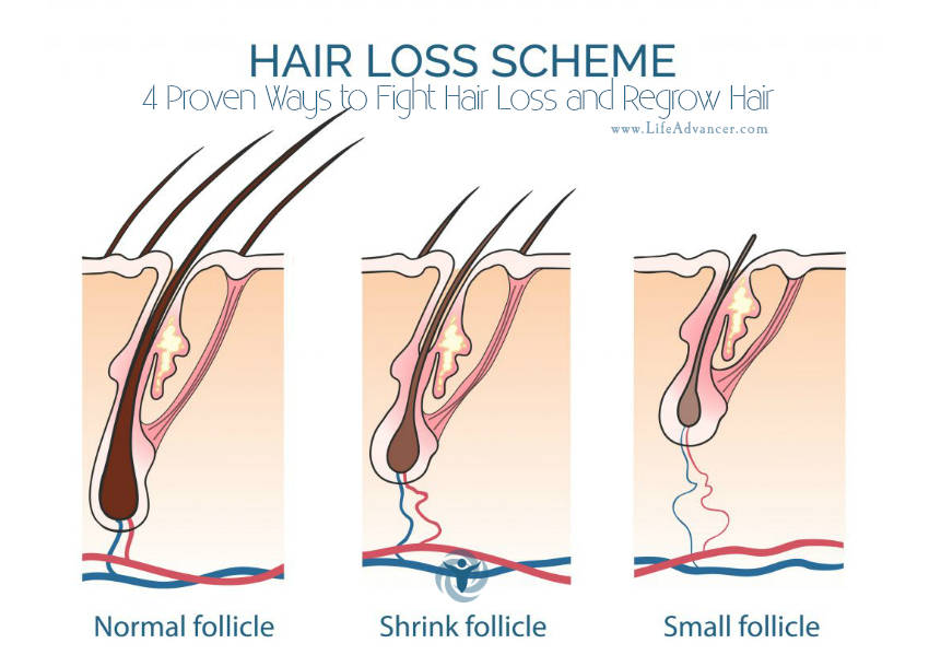 Hair Loss Regrow Hair