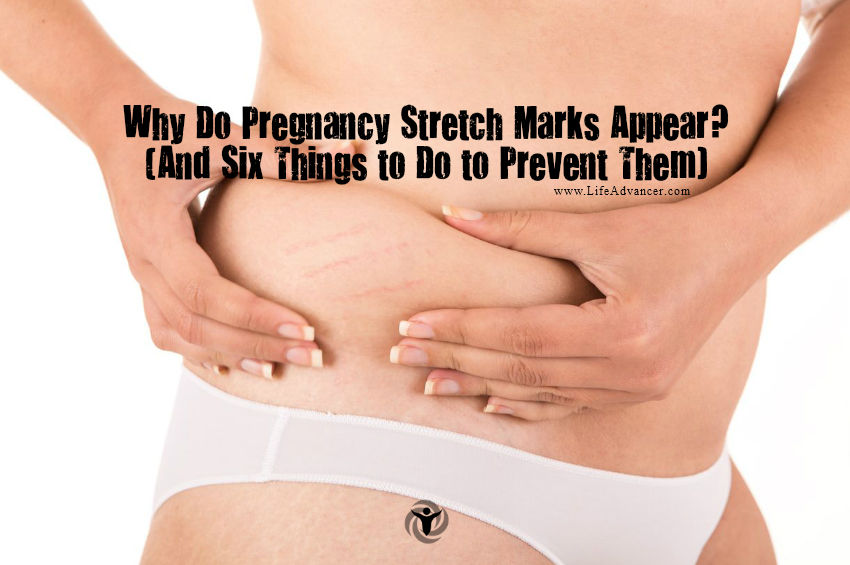 Why Do Pregnancy Stretch Marks Appear