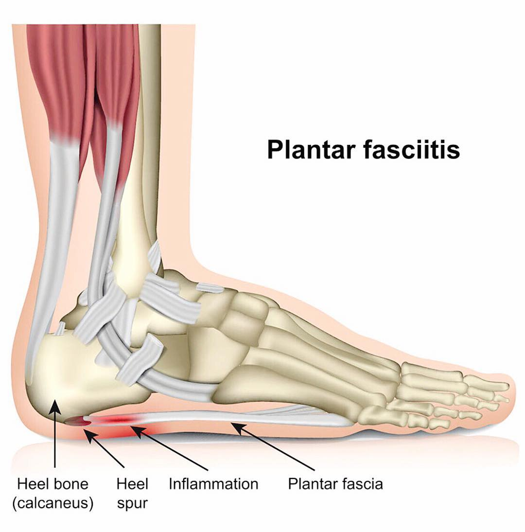 What Is Plantar Fasciitis Pain