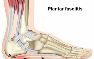 What Is Plantar Fasciitis Pain