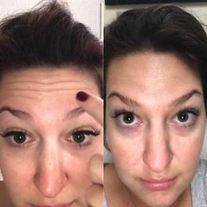 skincare botox