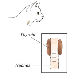 hyperthyroidism-1