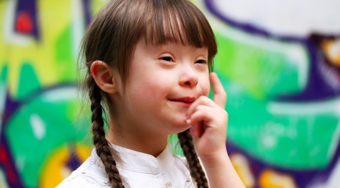 Arabic Babies Down Syndrome