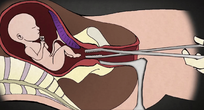 20 States Ask Supreme Court to Ban Dismemberment Abortions Tearing Off Babies' Limbs