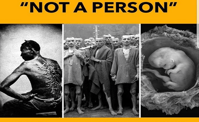 They Said Slaves Weren't People. They Say Unborn Babies Aren't People. Same Wrong, Different Century