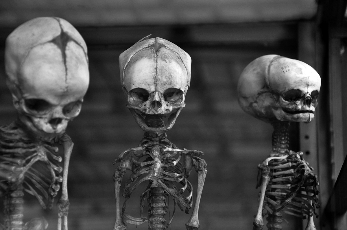 Children Skeletons from The Gallery of Paleontology and Comparative Anatomy
