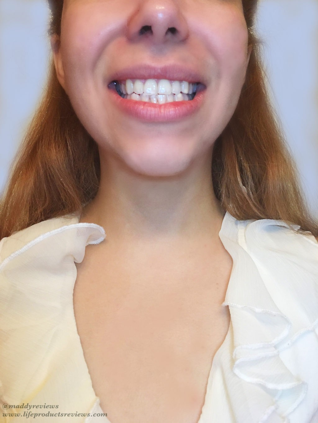 After-yellow-stain-teeth-results-front-smile-brilliant-pearly-whites-whitening-effect.jpg