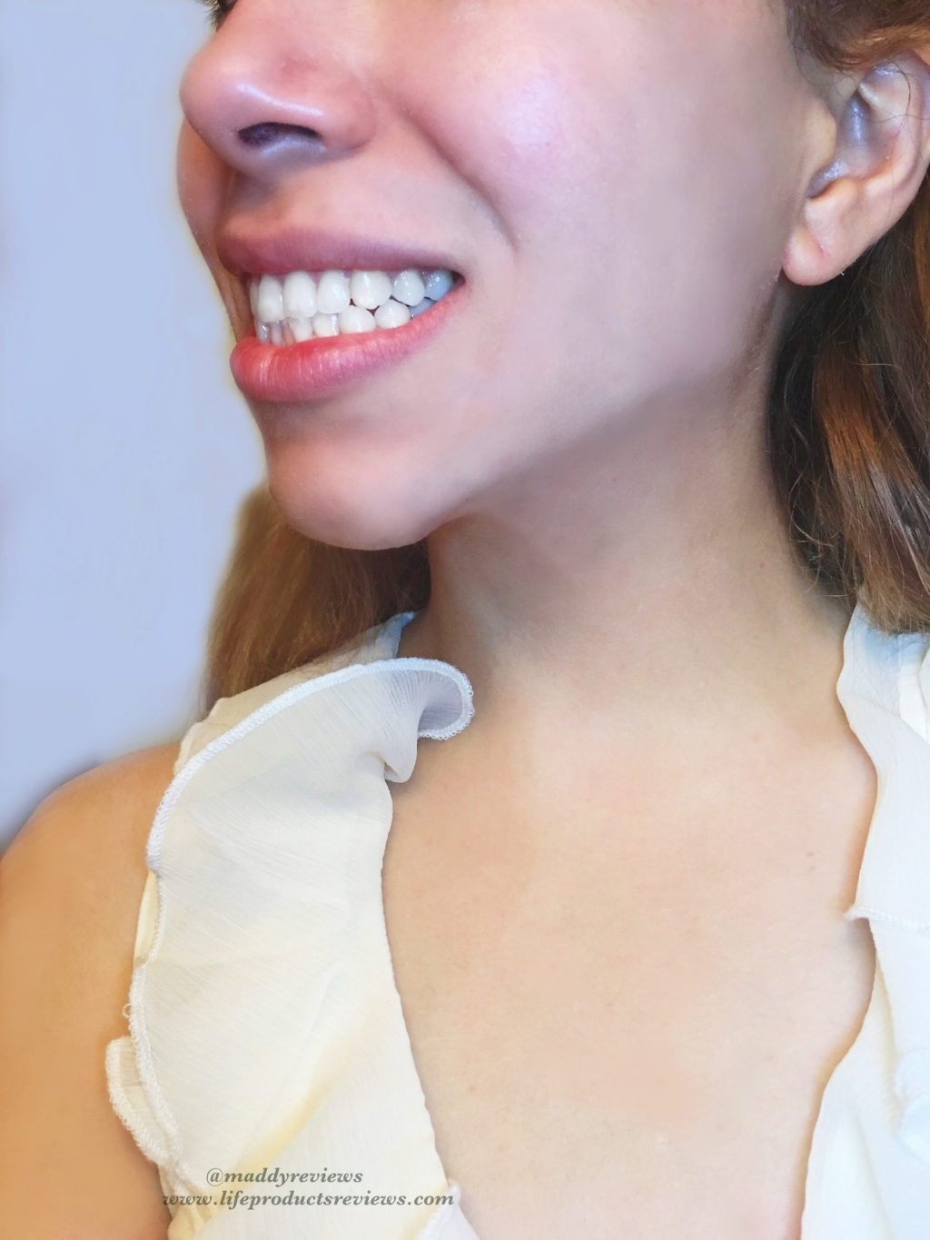 After-yellow-stain-teeth-results-side-smile-brilliant-pearly-whites-whitening-effect