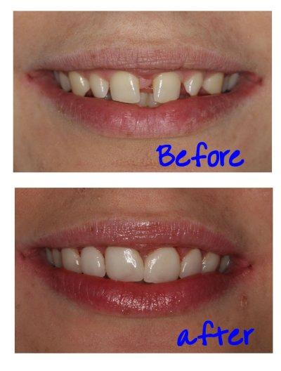 Recommended Dentists in Preston | Good Dentists in Preston ...