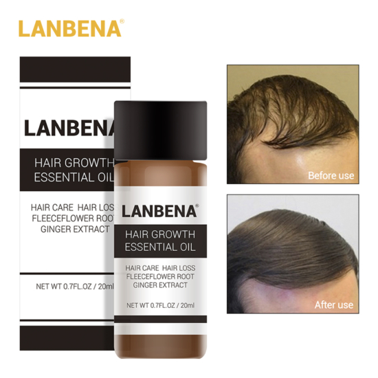 lanbena hair growth essential oil bd