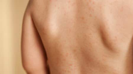 Baby Rash Decoder: What is This?