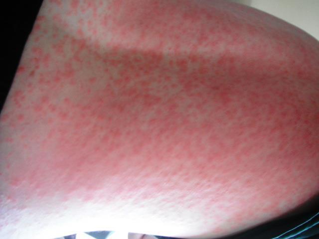 Allergic Reaction to Amoxicillin Amoxicillin Rash