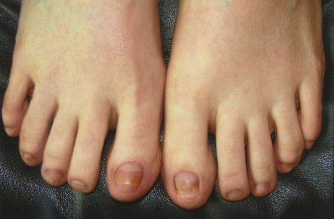About One Third Of People Who Have Nail Psoriasis Also A Fungal Infection 2