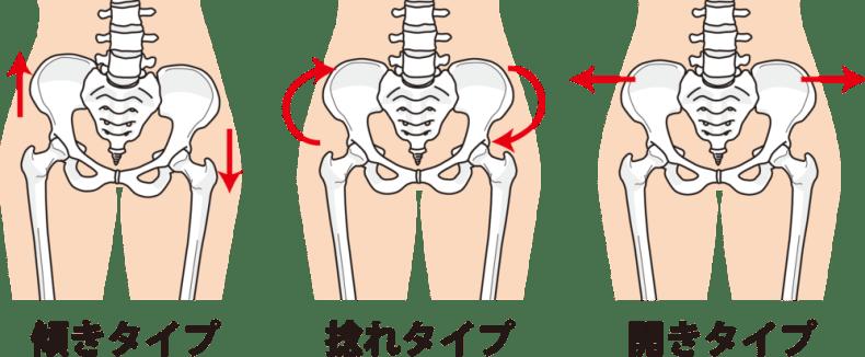 産後の骨盤の歪みによるお悩みTOP10!