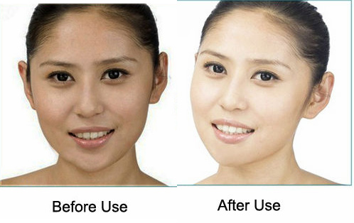 kojic acid skin lightening cream soap reviews and side effects lightskincure