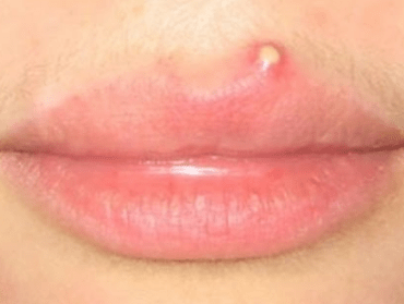 bump on lips not painful a cold sore fordyce spots white red tiny reme s and how to