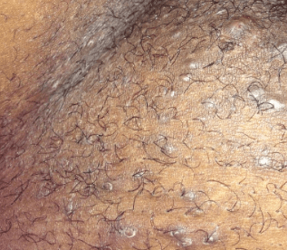 ingrown pubic hair cyst infected hard lump bump rid of removal treatment and pictures