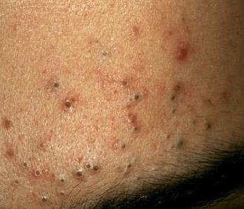 black dots on skin tiny small itchy spots marks pregnancy waxing causes rid