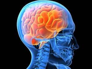 Alzheimer, trovata causa scatenante