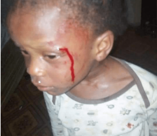 : 2-year-old girl allegedly beaten by her mother in Akure for not being able to count 1 to 200