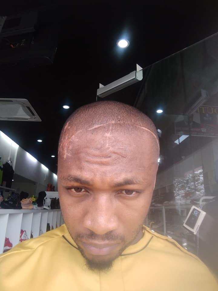 Malaysia-based Nigerian man narrates how his blood brother almost killed him lindaikejisblog 2
