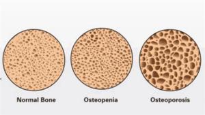 La osteopenia