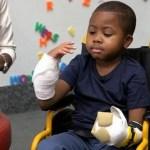 μεταμόσχευση δύο χεριών σε παιδί2