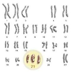 foto articolo cromosoma