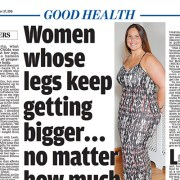 daily-mail-article-lipoedema