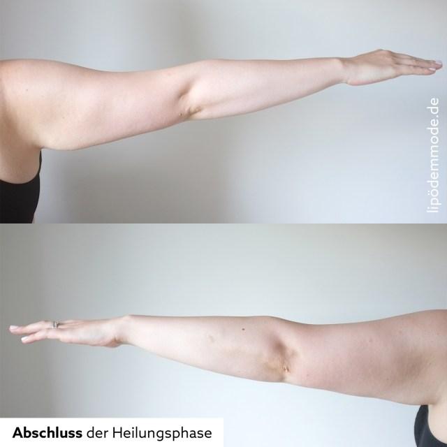 lipoedem mode liposuktion arme heilungsphase erfahrung erfahrungsbericht