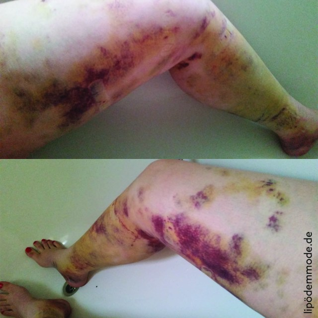 lipoedem mode liposuktion erste op_beine innen erfahrung erfahrungsbericht