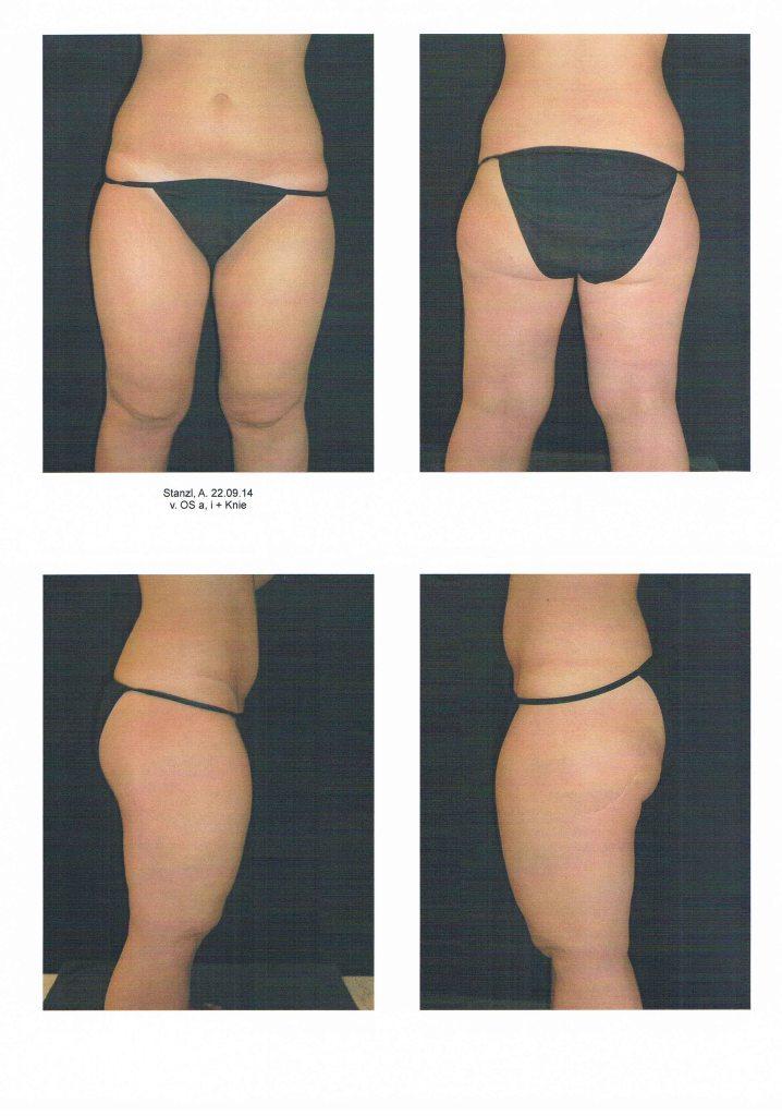 liposuktion liposuction lipödem lipoedem lipoedema lipedema erfahrung oberschenkel vorher hanseklinik lübeck