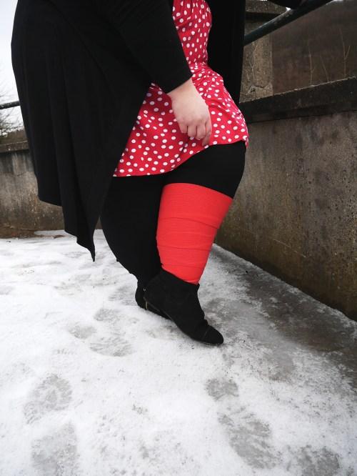 lipoedem mode britte gesellschaft bandagen lymphödem verständnis