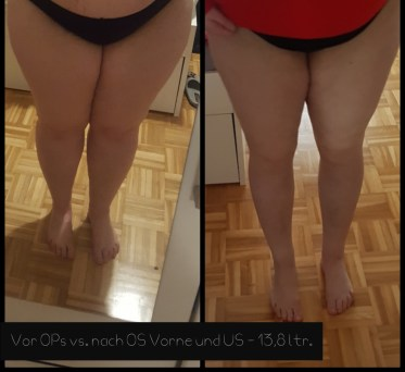 lipoedem mode liposuction liposuction before after LipoClinic stage 2 3 dr. witte lipedema mühlheim an der ruhr operations report experience before after
