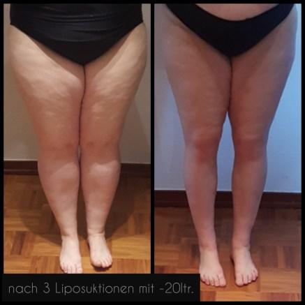 lipoedem mode liposuktion dr witte LipoClinic Teil 3 vorher nachher before after