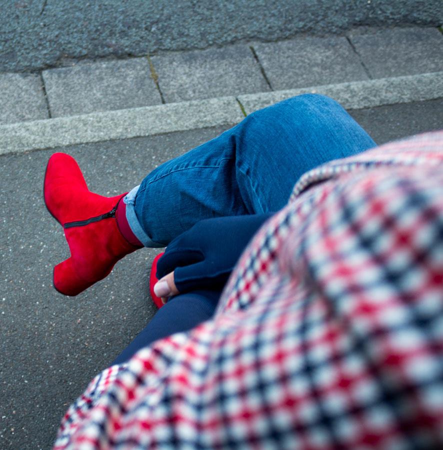 Lipoedem fashion navy blue red bowler hat Britchic Caroline Sprott medi arm compression arm socks