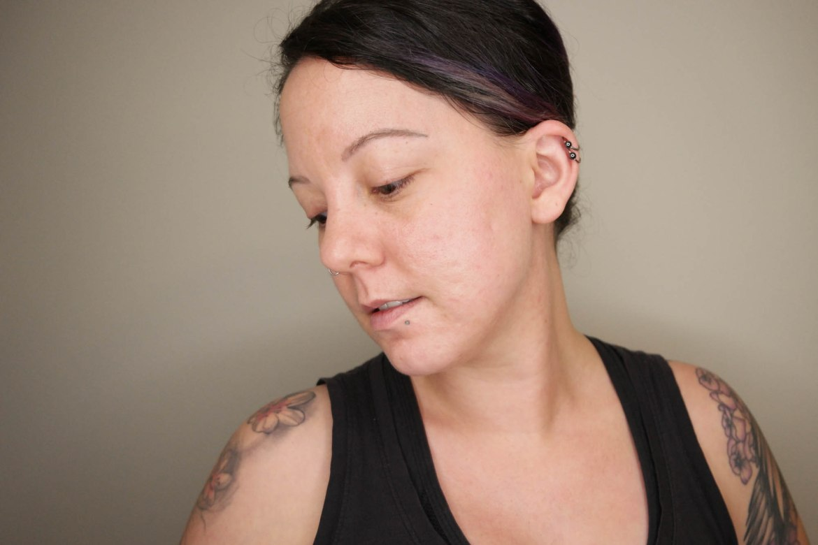 Retinoid update: how I got rid of acne discoloration