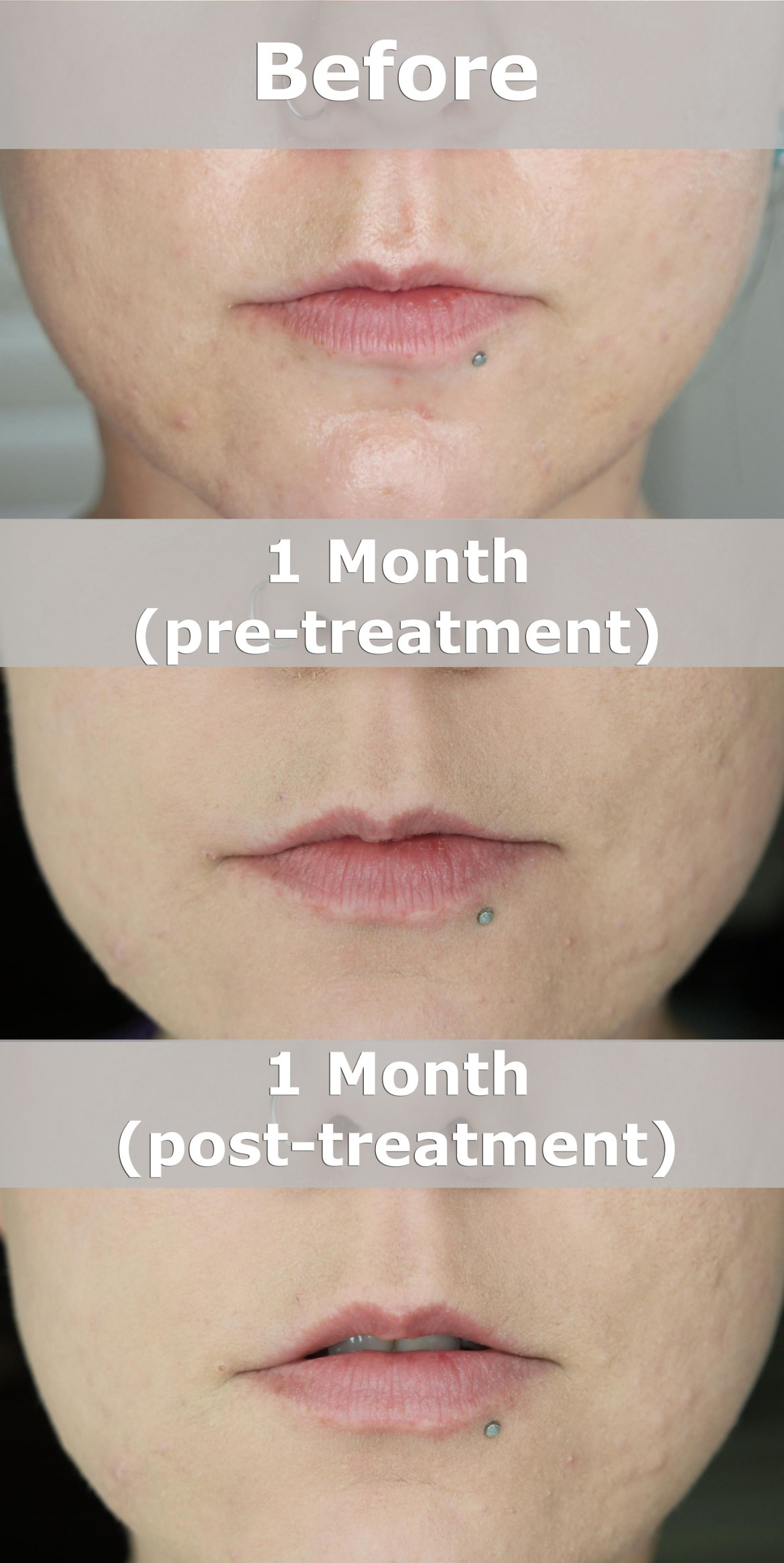 PMD Kiss Natural Plumped Lips