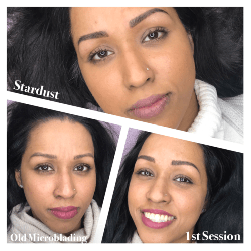 Stardust_Old Microblading-B4&A