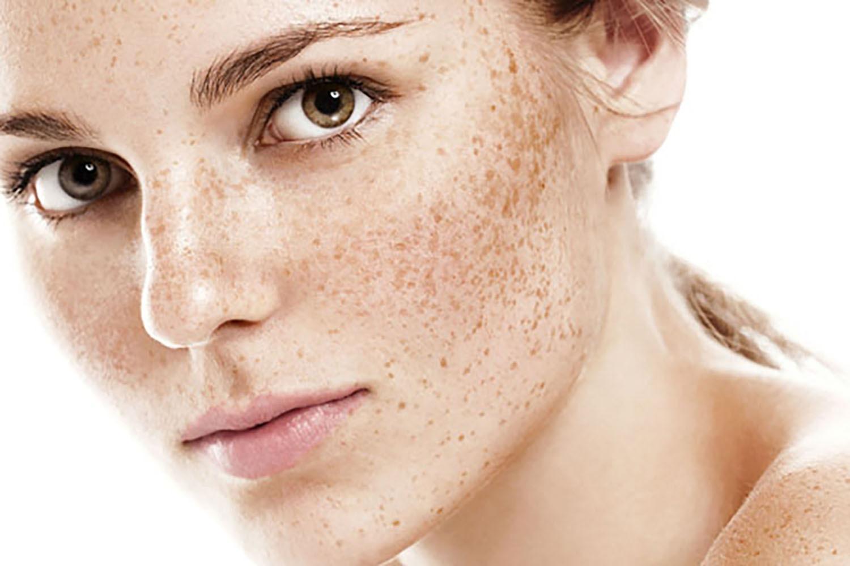 permanent freckles