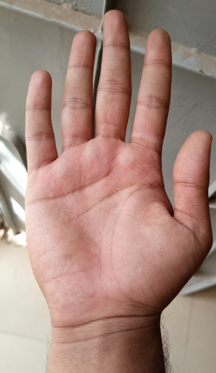 Hand of a Laborer.