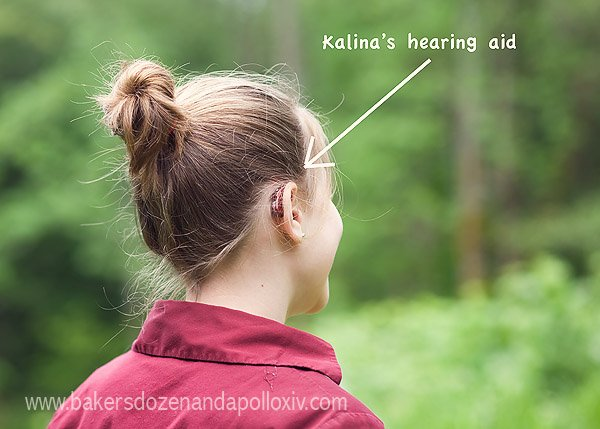 hearing loss in children, hearing loss in kids, unilateral hearing loss, hearing aid child, hearing aid kid