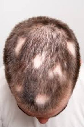 Alopecia areata treatment in ayurveda